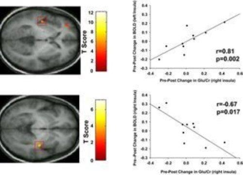 fibromialgia estudo